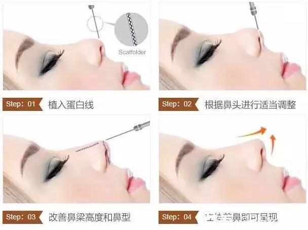 线雕隆鼻手术原理