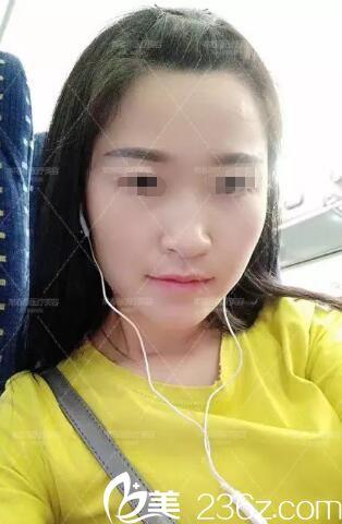 苏州常春藤整形医院杨国正术前照片1