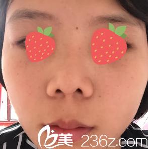 成都美瑞皮肤医院谷云岗注射肉毒瘦脸5个月恢复日记
