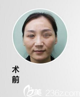 漯河缔莱美整形美容医院杨胜发术前照片1