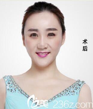 漯河缔莱美整形美容医院杨胜发术后照片1