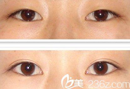 切开法双眼皮手术前后对比