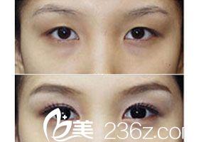 韩式双眼皮手术前后对比