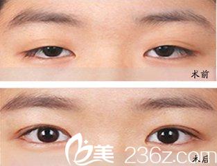 上睑下垂是很常见的,可以通过双眼皮手术来改变
