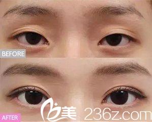 多眼皮除了天生的意外大部分是第一次做双眼皮术的后遗症,可以修复