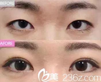 倒睫毛对眼球的伤害挺大,可以通过双眼皮术矫正