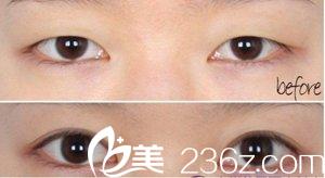 两眼间距近,眼睛给人感觉特别小
