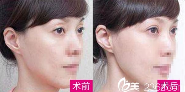 上眼睑凹陷显老可以通过双眼皮术矫正