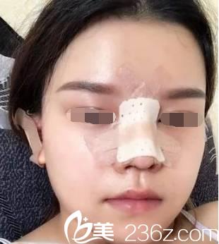 韩国will医院鼻综合手术