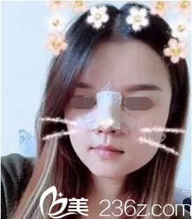 韩国鼻综合真人案例