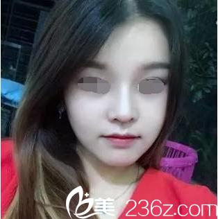 韩国will医院假体加自体鼻综合真人案例分享