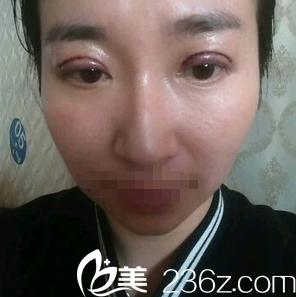 开扇形双眼皮术后1天效果