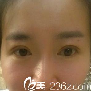 成都花田全切双眼皮术后1个月恢复照