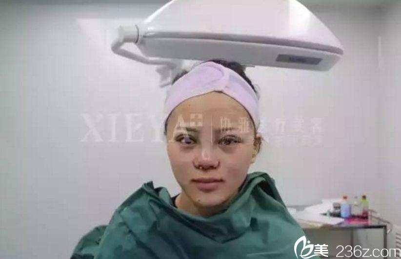 长沙协雅隆鼻+双眼皮真人案例