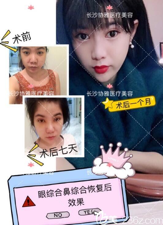 樊涛医生打造的案例 长沙协雅