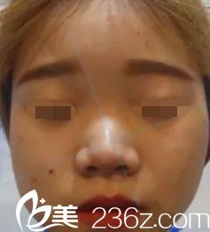 韩国will医院的魏亨坤院长为我做了一个鼻综合,让我活出自我