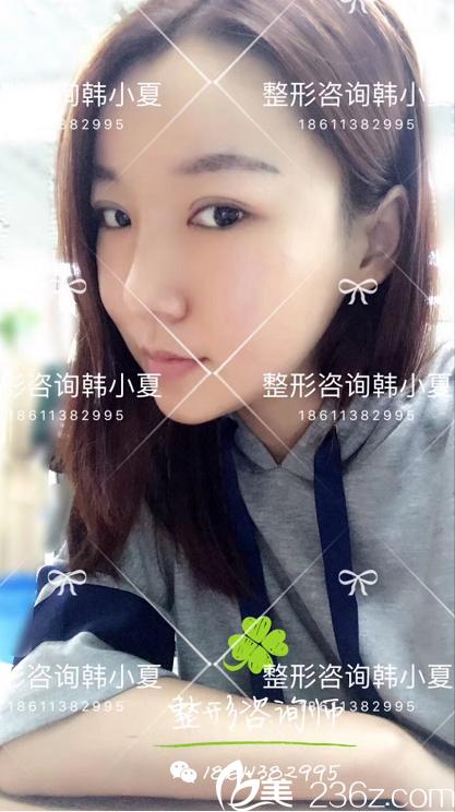 韩国id做的鼻骨内推+垫鼻尖鼻综合+T型截骨+下颌角轮廓+自体脂肪填充5个月恢复过程