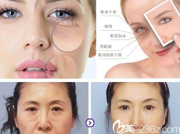 杭州整形医院眼周抗衰案例