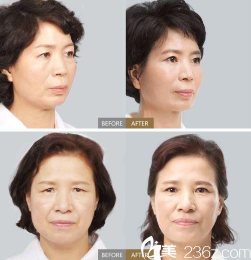 杭州整形医院菲洛嘉美肤案例
