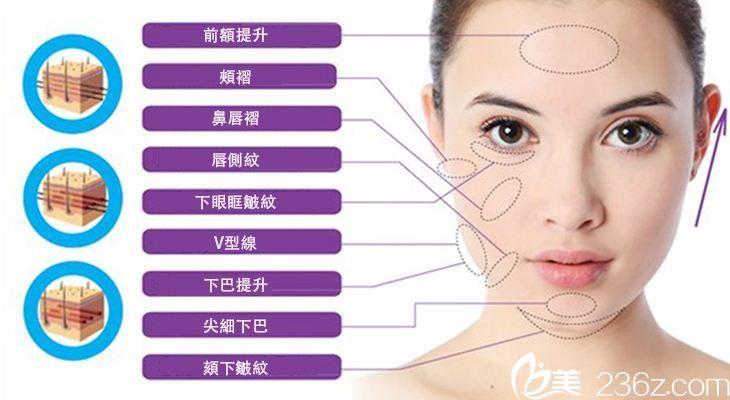 杭州东方整形线雕专业医生曾茜为你介绍什么是线雕以及线雕的优势