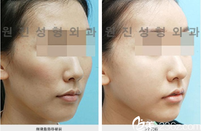 韩国原辰医院面部自体脂肪填充案例