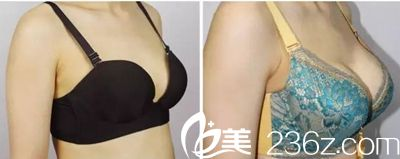 辣妈在长春铭医找杨晓光院长做假体隆胸术后3个月恢复过程