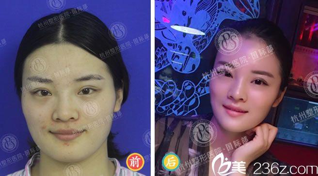 杭州整形医生杨甄宇的自体脂肪填充案例