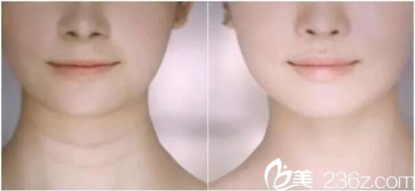 """连云港大明亲身体验嗨体去颈纹,完美""""天鹅颈""""案例效果"""