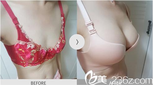 韩国麦恩医院李圣郁院长告诉你做假体隆胸要如何选择