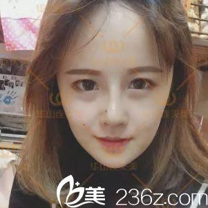 看邻家小妹在杭州华山连天美做膨体隆鼻和耳软骨垫鼻尖的效果怎么样