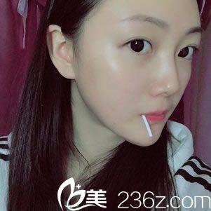 看我在杭州整形医院找唐冬生做下颌角改脸型75天恢复效果怎么样