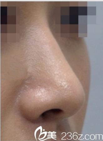 在韩国艺德雅整形外科花26800元做驼峰鼻矫正,权章德院长案例