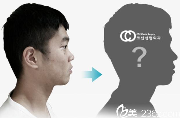 韩国蔻茜李珉奭院长做玻尿酸垫下巴+假体隆鼻真人案例