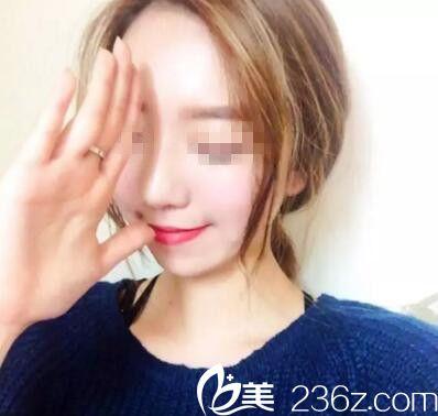 """新秀网红小""""朴信惠""""华丽转身 原来她曾经也是塌鼻子"""