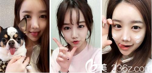 韩国face-line整形医院李真秀做下颌角多少钱?怎么样?真人案例分享