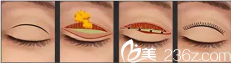 微创双眼皮手术