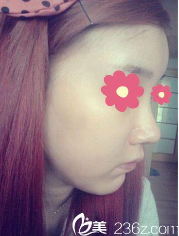 韩国O&YOUNG鼻整形+脂肪移植终于有了喜欢的小脸