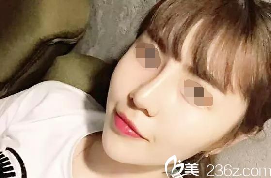 美女更精致,韩国will医院一个鼻综合美出新高度