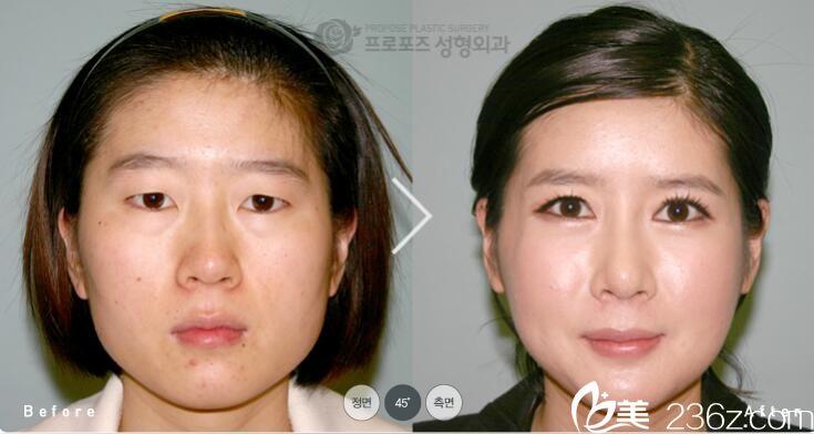 韩国PROPOSE整形医院金志昱做下巴缩小手术效果怎么样?方下巴缩小真人案例