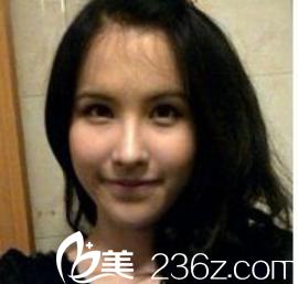 泰国妹妹分享在韩国三星LINE找申铉德院长做鼻子案例