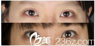 韩国MVP整形双眼皮修复怎么样?过宽多钱?玄炅倍院长案例
