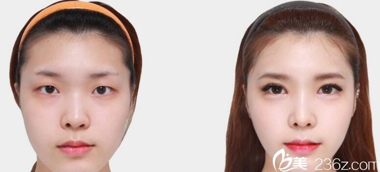 韩国佳轮韩整形外科朴鲁爀做鼻子好不好?鹰钩鼻矫正真人案例