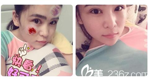 看我找广州海峡整形医院吕方中医生做的双眼皮案例效果怎么样