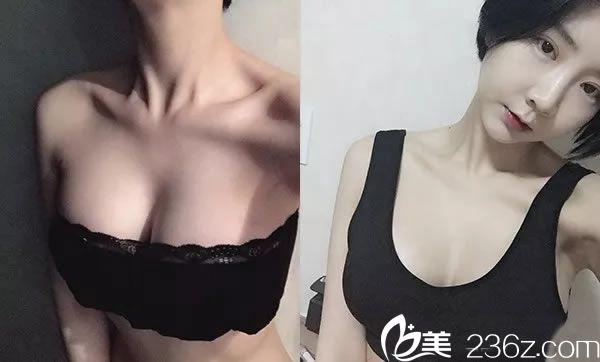 韩国原辰隆胸手术第10周效果