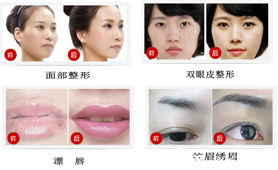 蔡伟平,欧菲整形无创中心技术院长,擅长项目:面部微整塑形,微分法图片