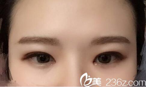 韩国朴宰佑整形外科朴宰佑眼睛,鼻子做的好不好?双眼皮+隆鼻真人案例