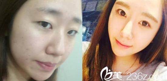 真人案例告诉你在韩国贝缇莱茵医院隆鼻和割双眼皮怎么样?多少钱?