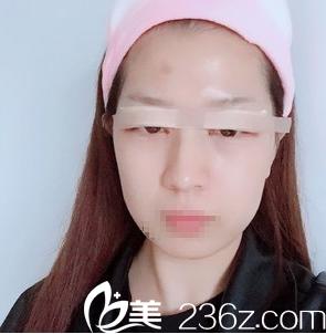 这是手术结束1天后拍的照片,眼睛包扎的比较严实,看不太出来效果!