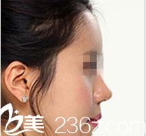 在韩国ITEM(爱婷)花26000元做硅胶隆鼻一个月,郑宇振院长案例
