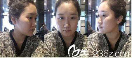 韩国Romian路美颜整形姜民范做下颌角效果怎么样?下颌角切除真人案例